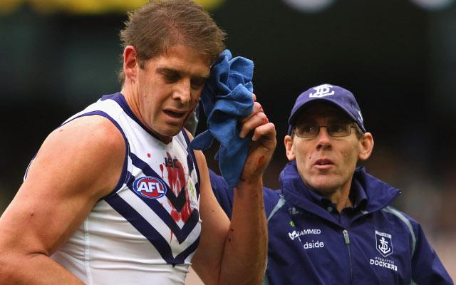 Fremantle coach backs injured stars to be right for AFL finals
