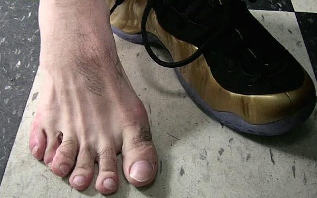 (Video) This little piggy: Boxer Danny Garcia reveals he has six toes