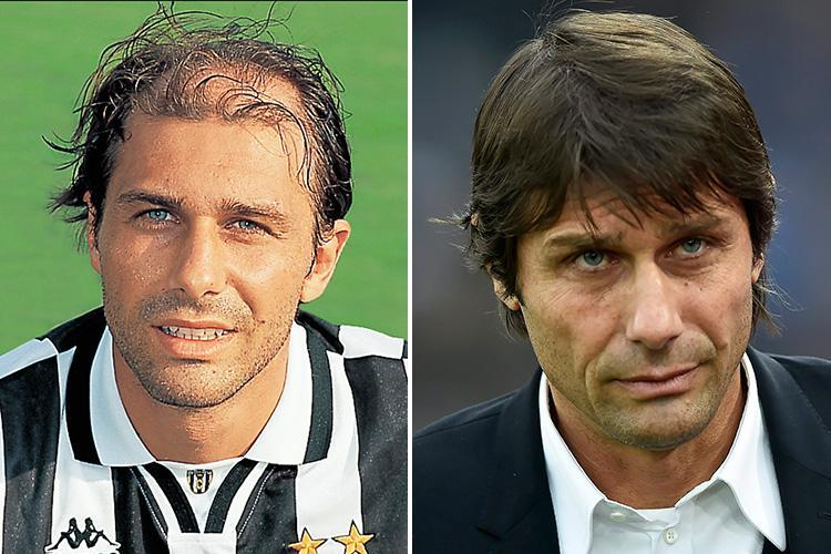 How Antonio Conte transformed his appearance with bid to tackle hair loss